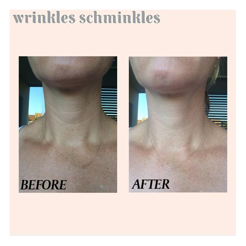 wrinkles-schminkles-neck-smoothing-kit, | primary image