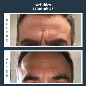 Wrinkles Schminkles Men's Forehead Smoothing Kit Before and After, | primary image
