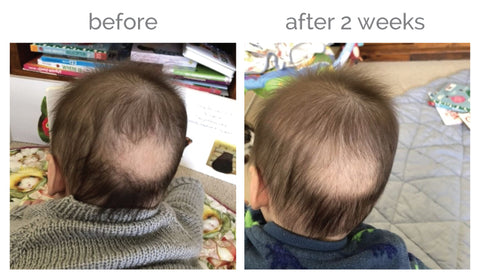 before and after silky tots