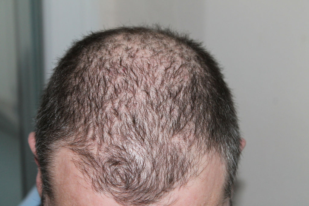 A Guide to Hair Loss