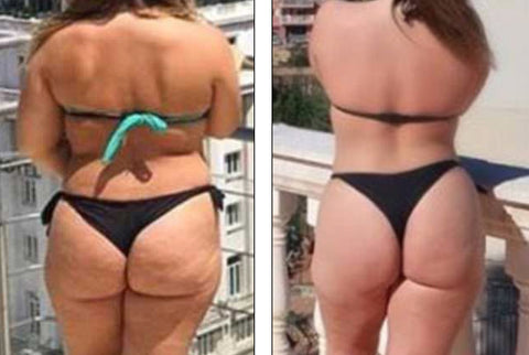 The Shadow Tells The Truth About Woman S Disappearing Cellulite Theblackpurple