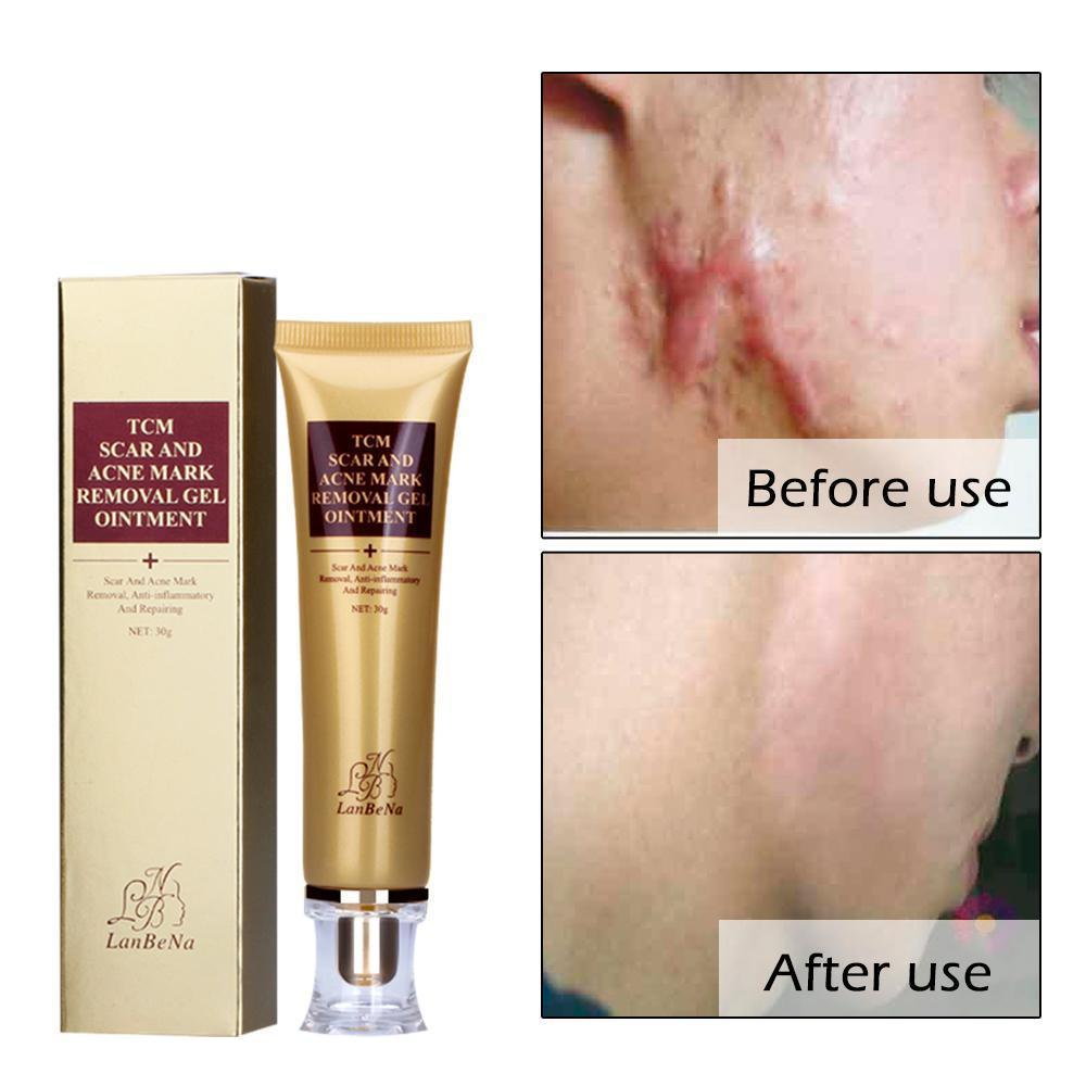 Scar Remover Serum - Acne Scars & Stretch Marks