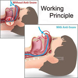 Anti-Snoring Breathe Aid Stop Snore - EZShopping