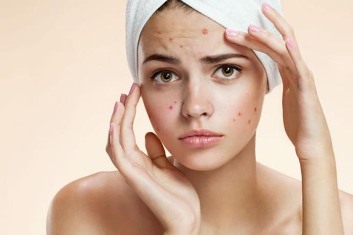 HOW TO GET RESULTS AND FIX YOUR ACNE PROBLEM