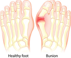 Bunions: Are You At Risk And What Can You Do? | Palm Beach Naturals
