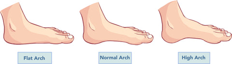 What Type of Foot Arch Do You Have? | Palm Beach Naturals