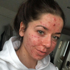 Acne is Normal: Emily