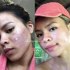Acne is Normal: Elizabeth