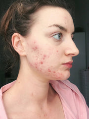 Acne is Normal: Skin with Lea