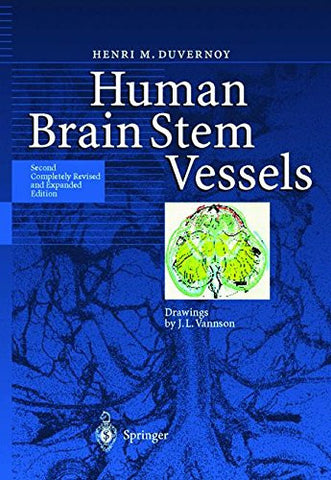Human Brain Stem Vessels: Including the Pineal Gland and Information on Brain Stem Infarction