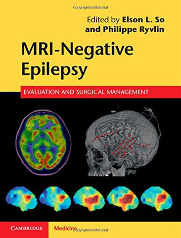 MRI-Negative Epilepsy: Evaluation and Surgical Management