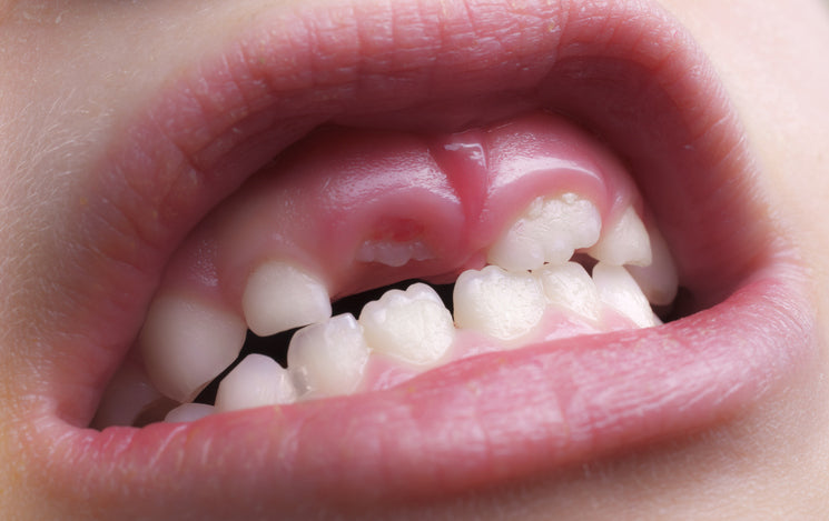 "Researchers Have Discovered That Our DNA Contains the Ability to Regrow Teeth - It Just Needs to be ""Switched on"""