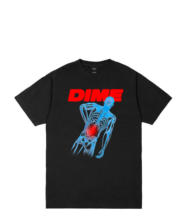Dime Back Pain T-Shirt