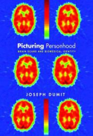 Picturing Personhood: Brain Scans and Biomedical Identity