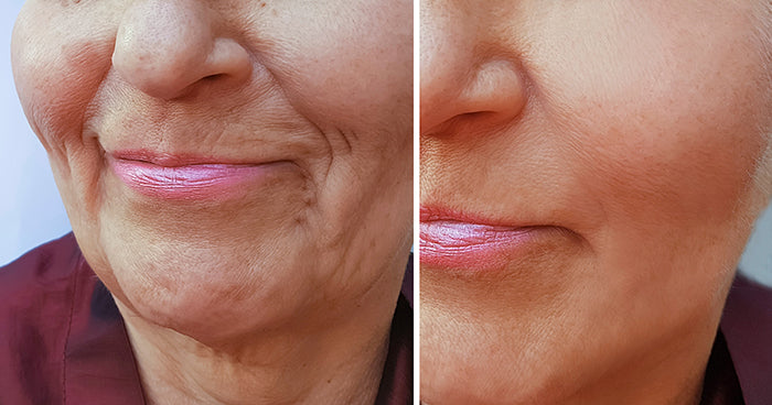 Stem Cell: The Innovative Filler | Look Younger In Under An Hour