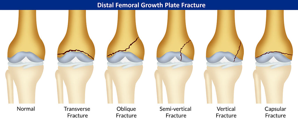 Knee Fractures- Causes, Signs and Healing Time