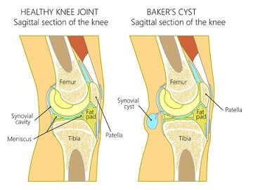 Baker's (Popliteal) Cyst in the Knee: Treatment Approaches