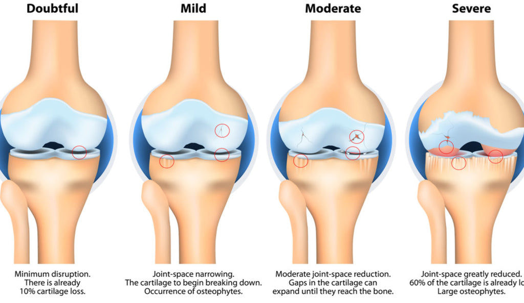 Managing Osteoarthritis in your Knee