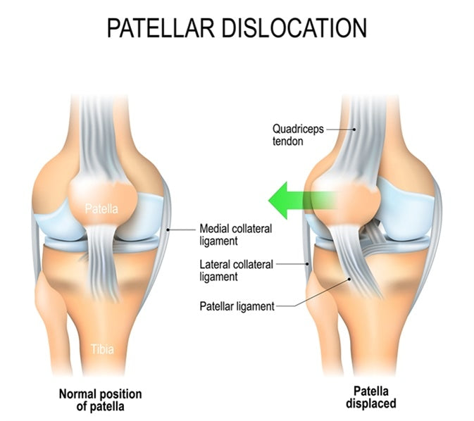Patellar Dislocations