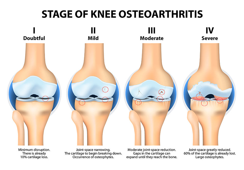 stages knee osteoarthritis