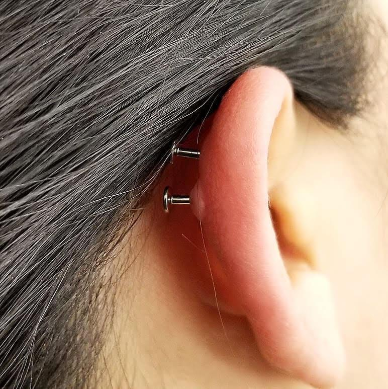 Cartilage Piercing Infections