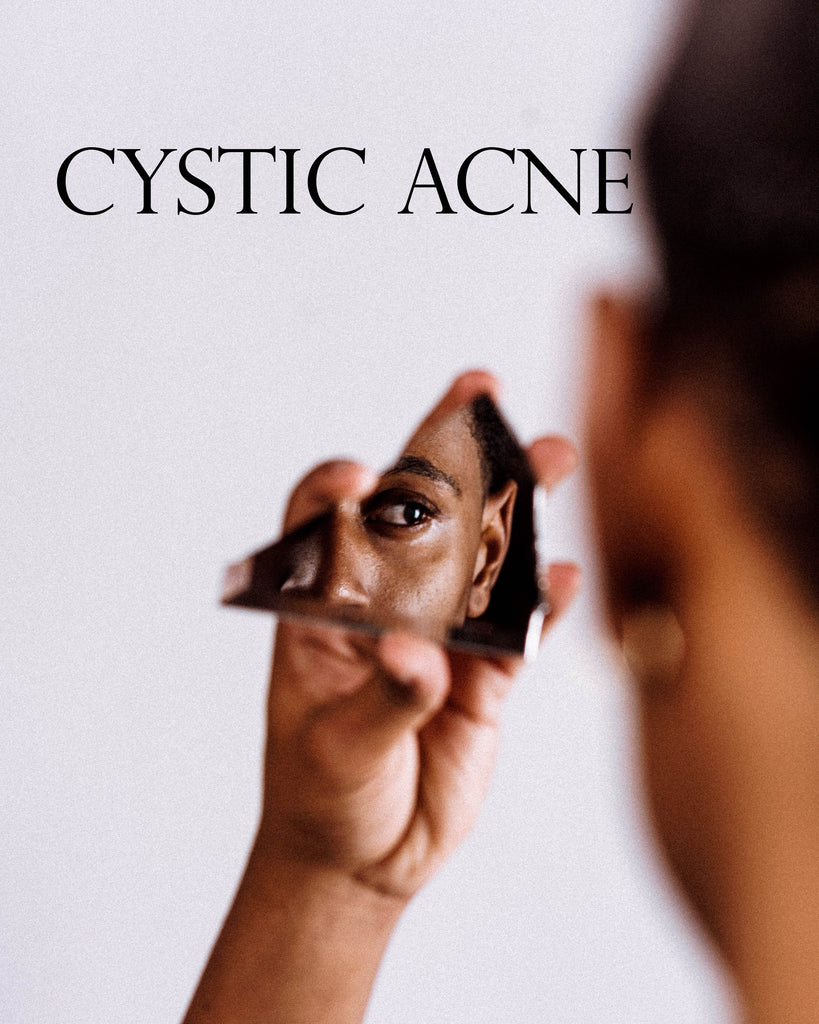 How to Attack Cystic Acne