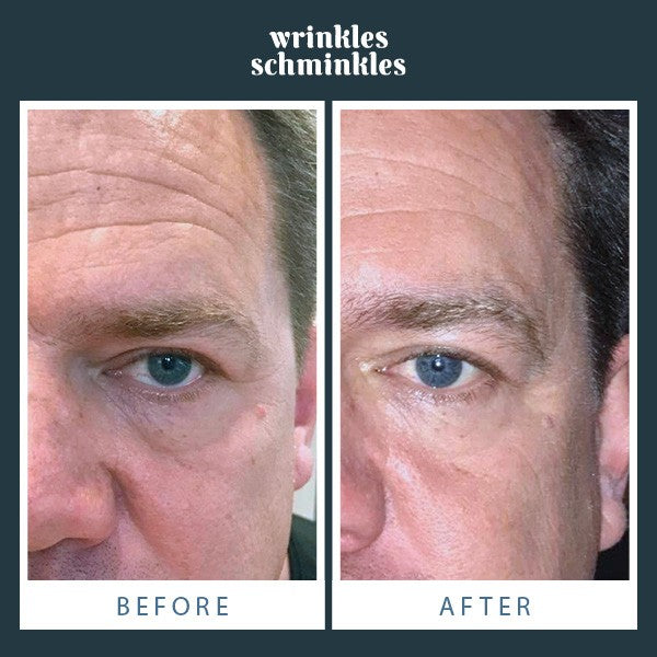 Wrinkles Schminkles Men's Eye Smoothing Kit - CULT COSMETICA