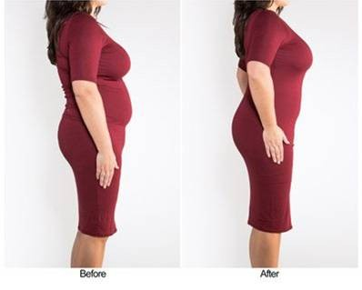 Girdle For Women - Before After