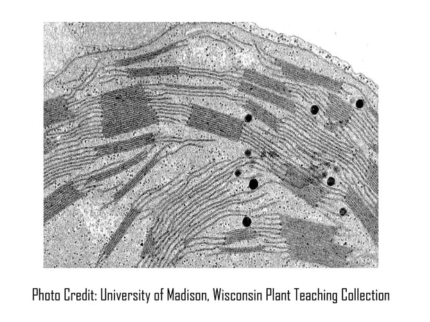 Chloroplast Micrograph University Wisconsin Madison Plant Teaching Collection [Ontogenie Science Jewelry]