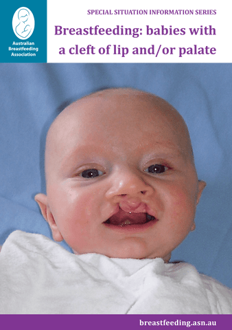 Breastfeeding: babies with a cleft of lip and / or palate cover
