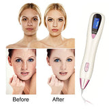 Beauty Device Laser Mole Freckle Warts Remover Skin Tag Tattoo Removal Pen  [954]