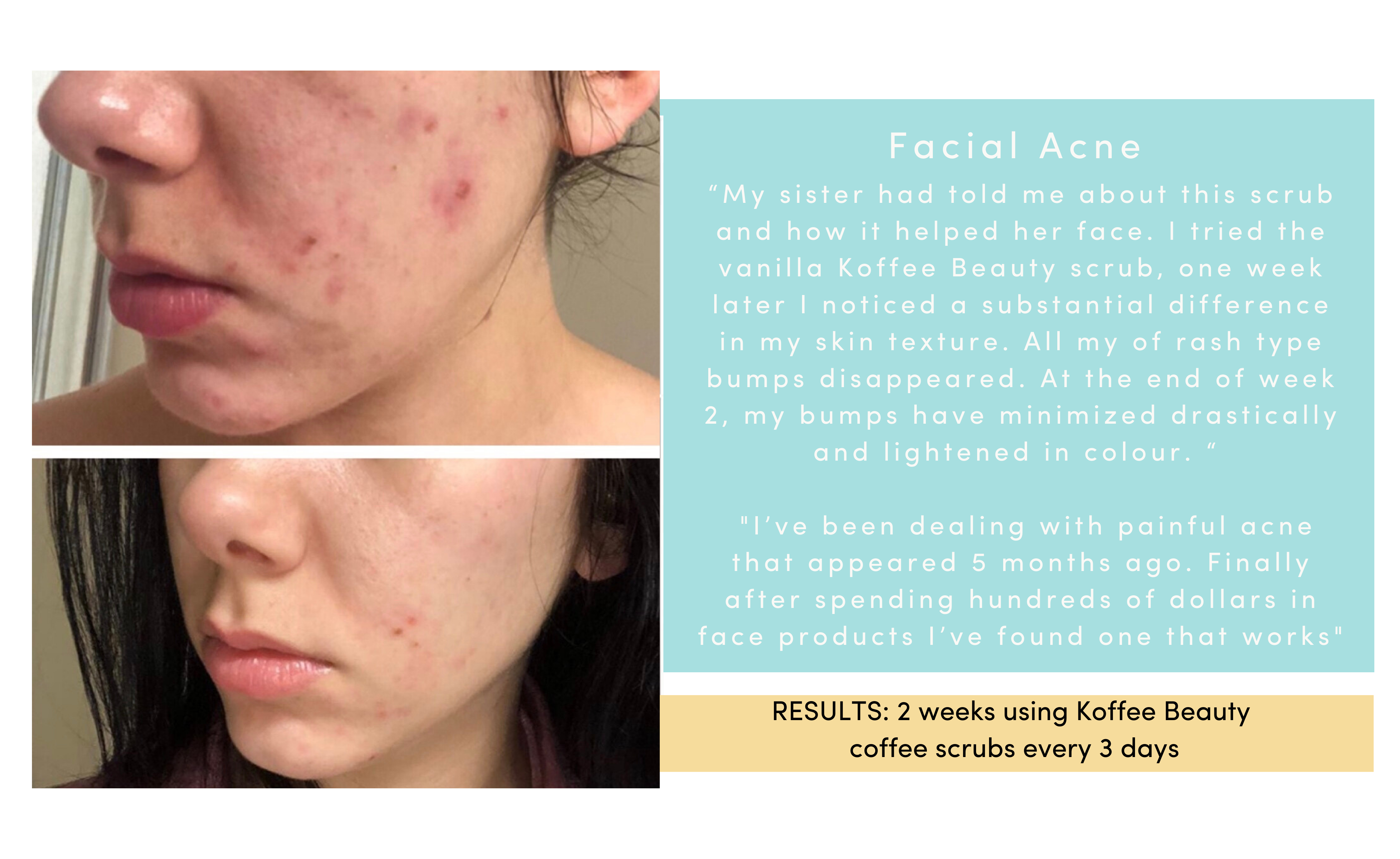 acne_results
