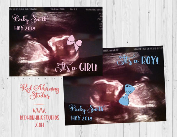 Ultrasound Gender Reveal. Sonogram gender announcement with your photo. PRINTABLE. pregnancy reveal sign. social media. bow or bowtie