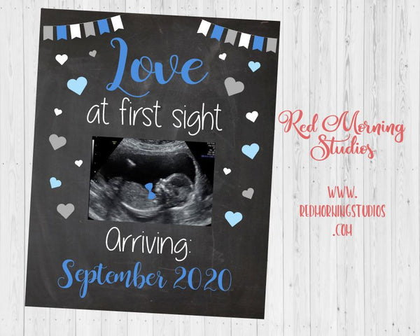 Sonogram Pregnancy Announcement sign. Ultrasound Pregnancy Reveal. New Baby announcement. Love at first sight. Boy Gender Reveal photo