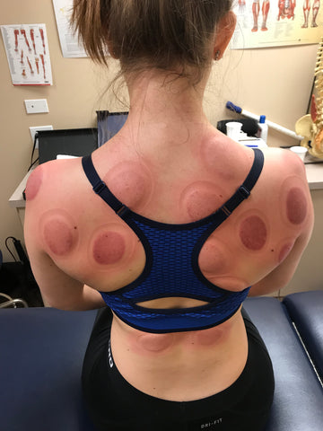 Cupping Therapy (after)