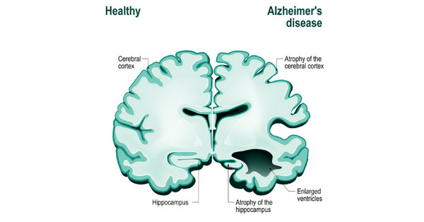 What happens to the brain during Alzheimer's disease?