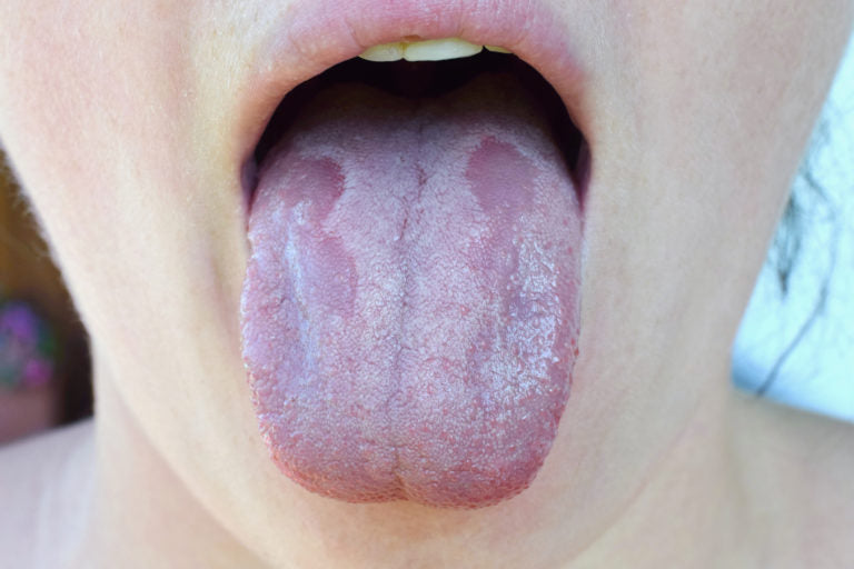 A persons tongue showing the effects of antibiotics | HealthMasters