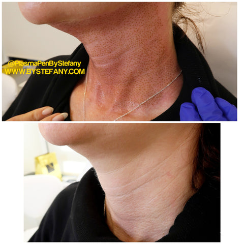 Before and Right After Treatment