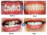 KuangPao® Adult Invisible Orthodontic Braces