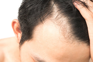 A Salon Guide to Hair Loss Prevention