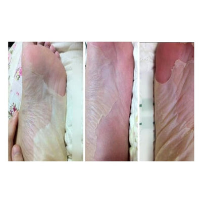 Perfect Silver Exfoliating Foot Peeling Mask peel Exfoliation exfoliates