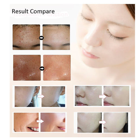 Light Photon Electric LED Facial Mask Skin PDT Skin Rejuvenation Anti Acne Wrinkle Removal Therapy Mask Beauty Salon