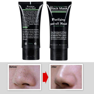 Blackhead Remover - Black Face Mask