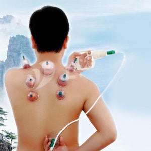 Premium Vacuum Cupping Set - With Magnetic Needle