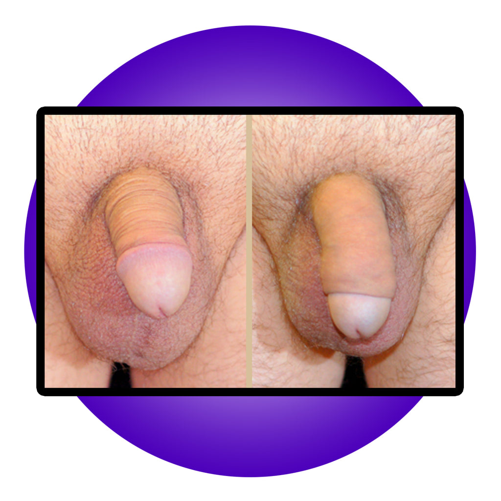 Penis Enlargement Surgery