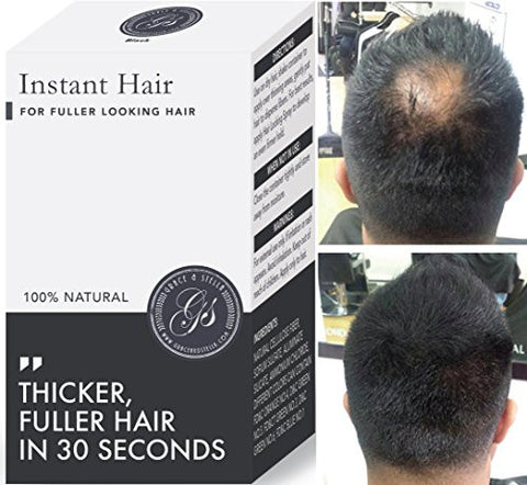 NEW 100% Vegan + Natural Hair Loss Treatment for Men & Women - 100%, Building Keratin Fibers, Concealer, prevention, Make Thinning Hair Thickener (Medium Brown) (5 week supply)
