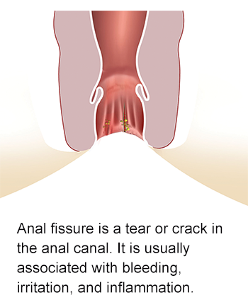 Anal irritation from feces