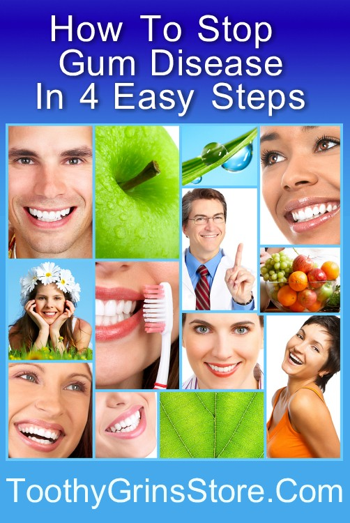 How To Stop Gum Disease In 4 Easy Steps - Free Guide Available
