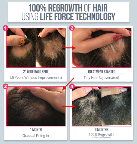 PEMF Therapy for Baldness and Hair Loss
