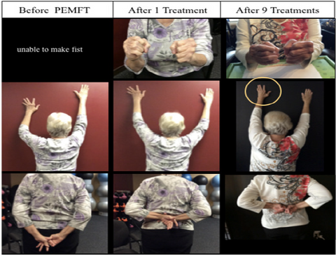PEMF Therapy For Seniors